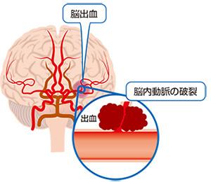 脳出血.png