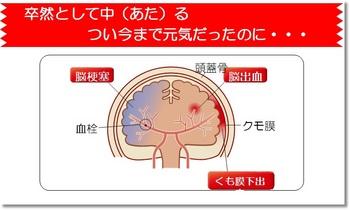 脳卒中 脳卒中・循環器病対策基本法の成立を求める会.jpg