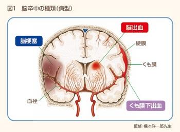 脳卒中図1.jpg