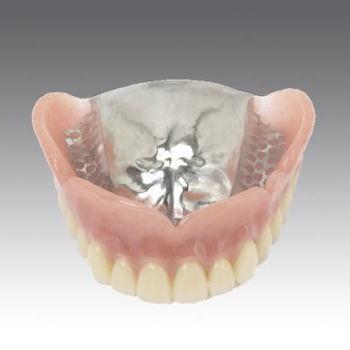 金属床義歯.jpg